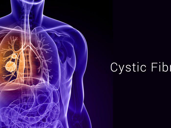 Diagnostic of CYSTIC FIBROSIS